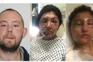 nationwide manhunt launched after horrific acid attack