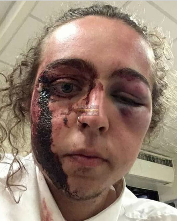 enough is enough as havant gang film attack on youngster on mobile phones