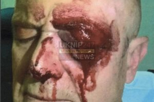 man left with serious eye injury following attack in reading