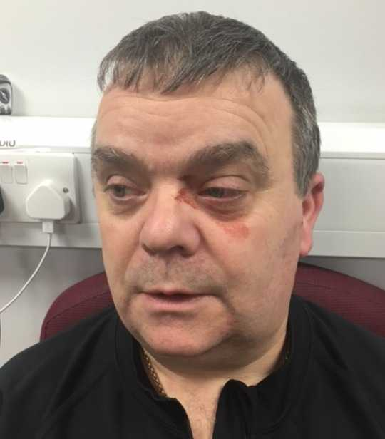 officer feared for his life after a man he was arresting tried to gouge his eyes out