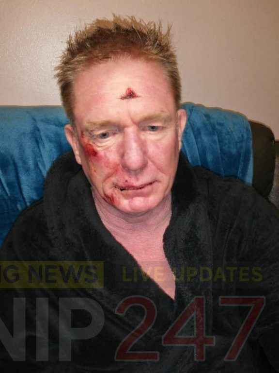 three yobs leave man with facial injuries