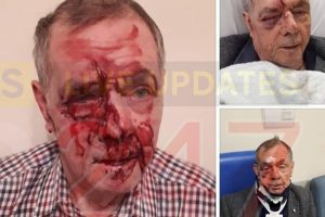 scumbags who beat pensioner to a pulp