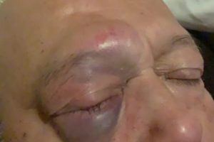 a despicable cowardly act as scum bags attack pensioner in portsmouth