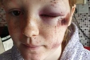hit and run leaves in southampton leaves teeneager with facial injuries