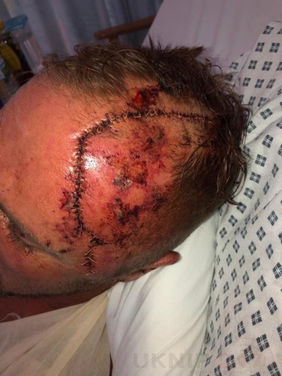 Left For Dead After Hit And Run Collision In Portsmouth