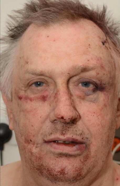 Evil child killer Roy Whiting feared he would be killed after being brutally attacked in prison with makeshift blades, UKNIP